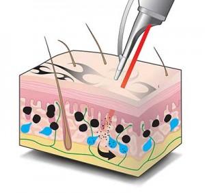tattooentfernung laser